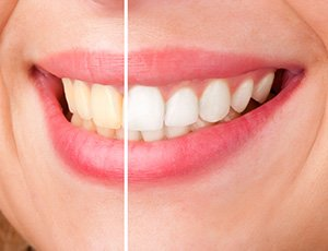 Closeup of smile half before and half after teeth whitening