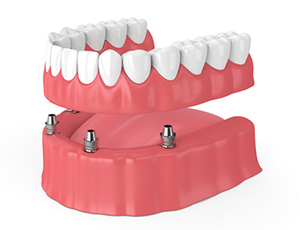 model of implant-retained denture