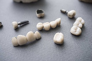 Implant crowns and bridges before placement