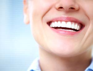 Porcelain veneer placement illustration