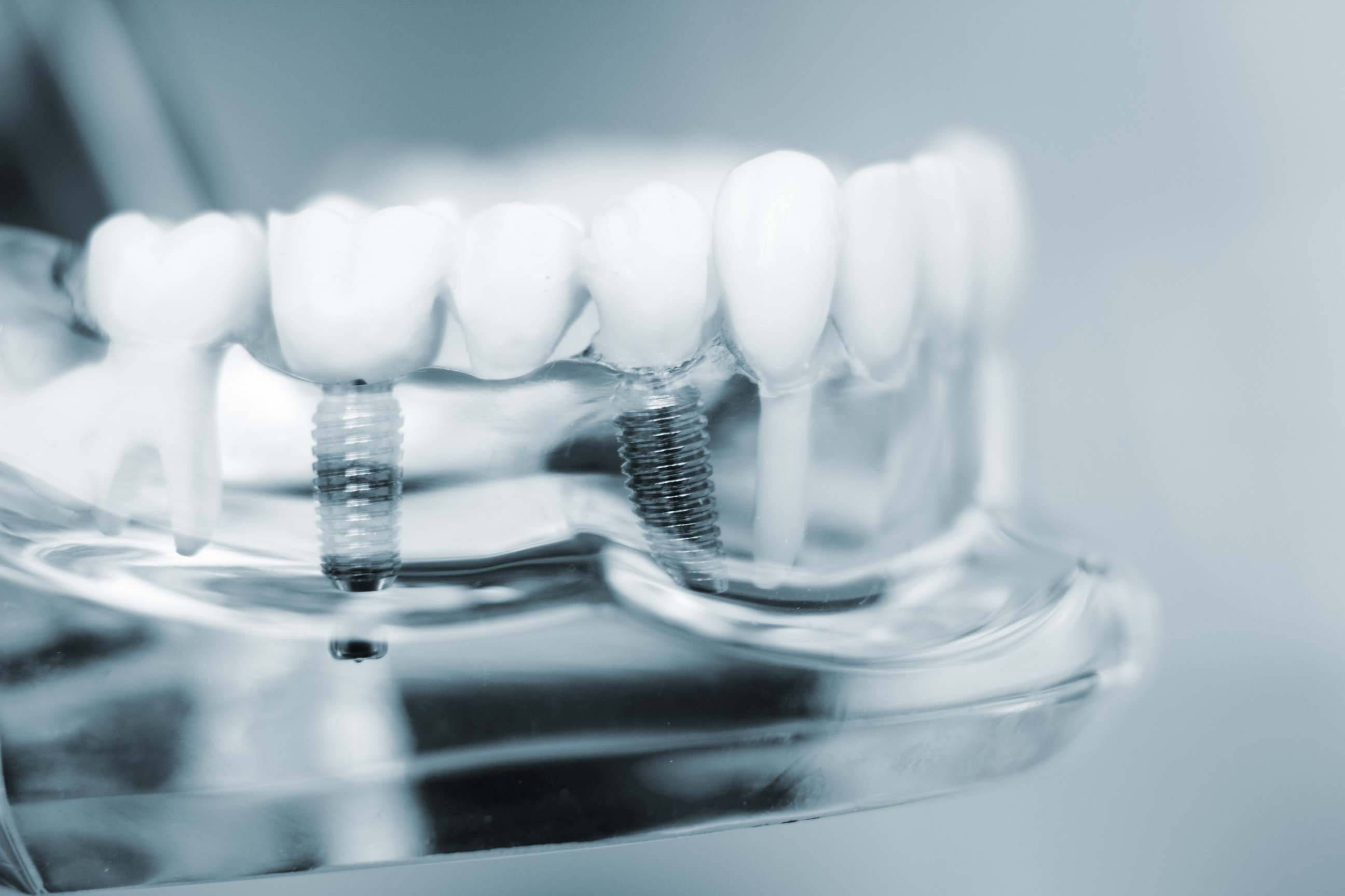 close-up of dental implant