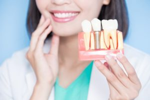 woman holding dental implants in Plano